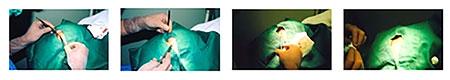 池袋セントラルクリニック|二重瞼の手術
